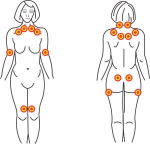 Cuáles son los 18 puntos sensibles de la fibromialgia