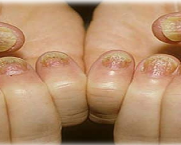Los Remedios caseros para hongos en las uñas pueden llegar a ser un gran alivio en muchos casos. Muchas veces estos hongos aparecen y desaparecen...